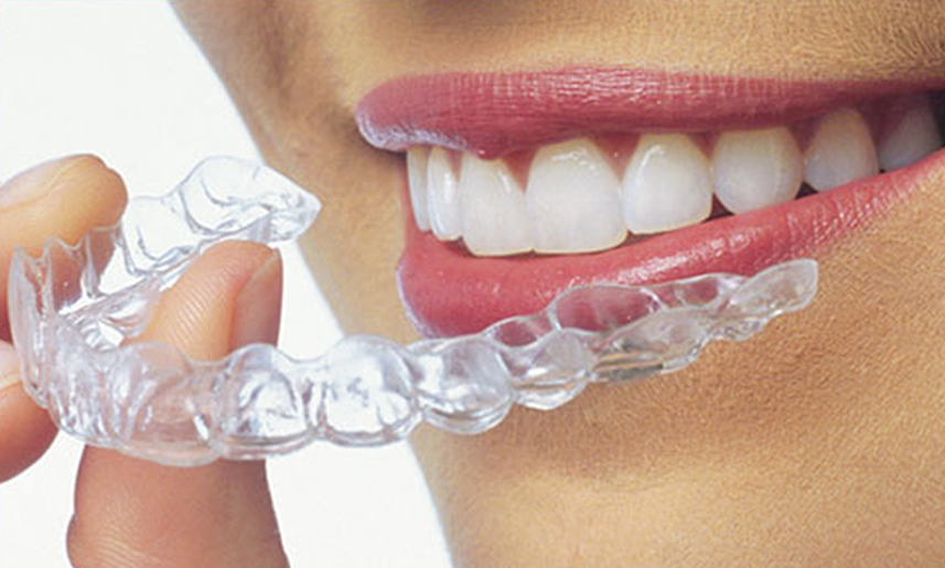 woman reviewing a candid aligner
